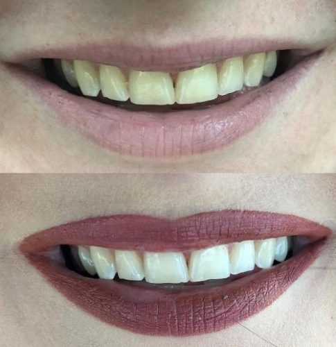 ShineUP | Brightly White |  Teeth Whitening Strips photo review